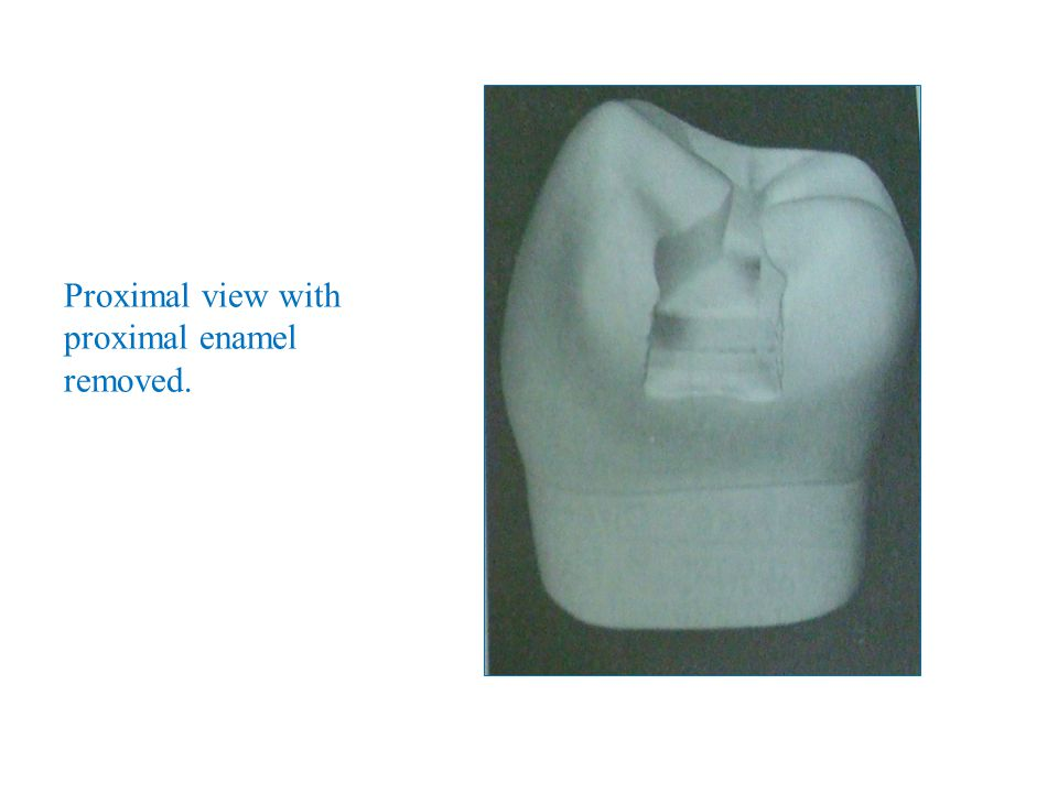 Proximal view with proximal enamel removed.