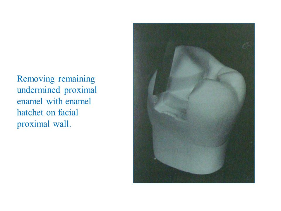 Removing remaining undermined proximal enamel with enamel hatchet on facial proximal wall.