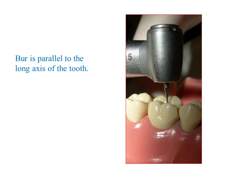 Bur is parallel to the long axis of the tooth.