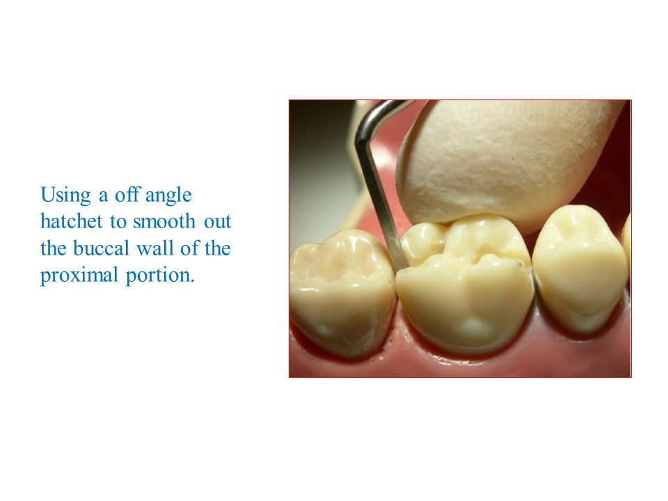 Using a off angle hatchet to smooth out the buccal wall of the proximal portion.
