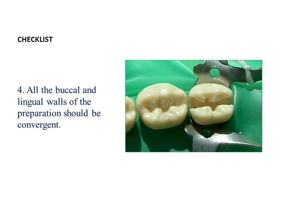CHECKLIST 4. All the buccal and lingual walls of the preparation should be convergent.