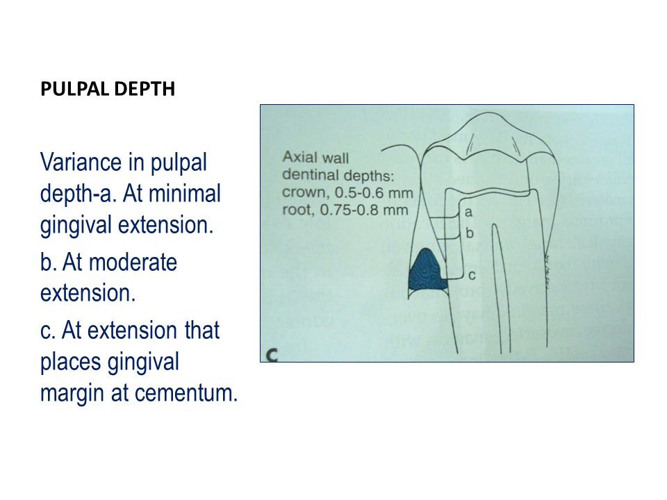 Variance in pulpal depth-a. At minimal gingival extension.