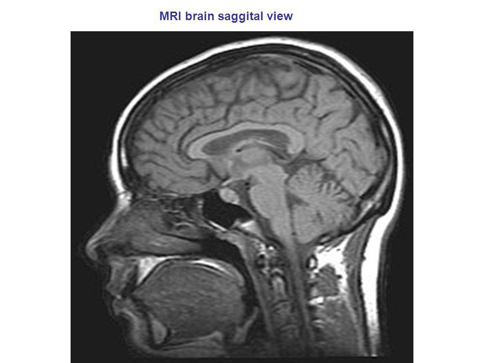 MRI brain saggital view