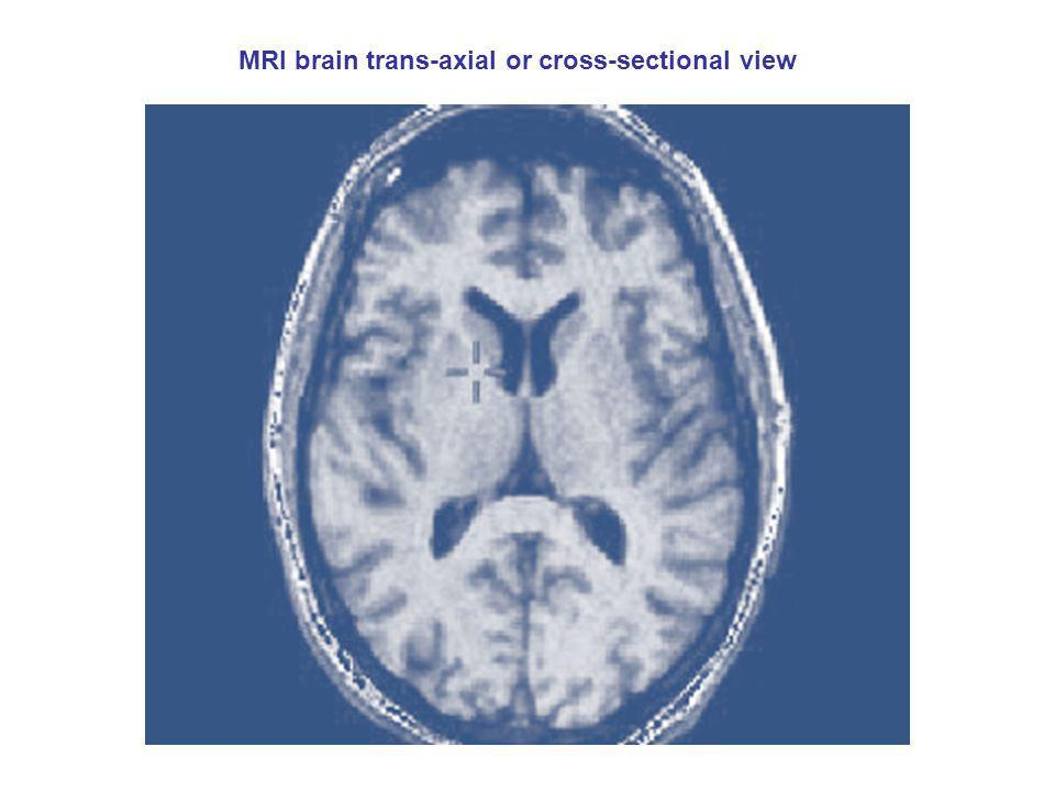 MRI brain trans-axial or cross-sectional view