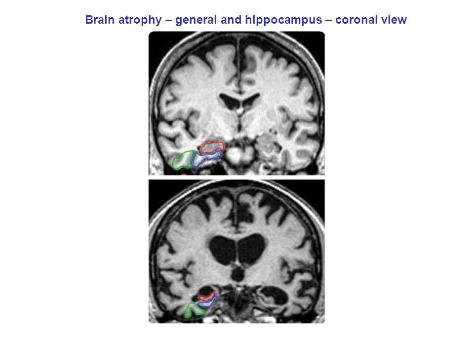 Brain atrophy – general and hippocampus – coronal view