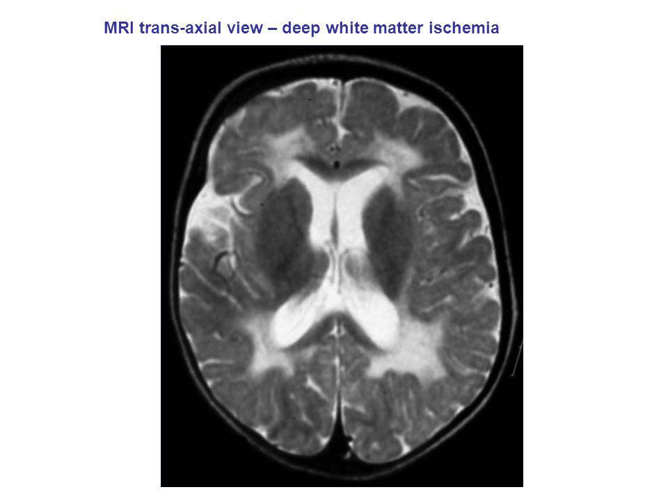 MRI trans-axial view – deep white matter ischemia