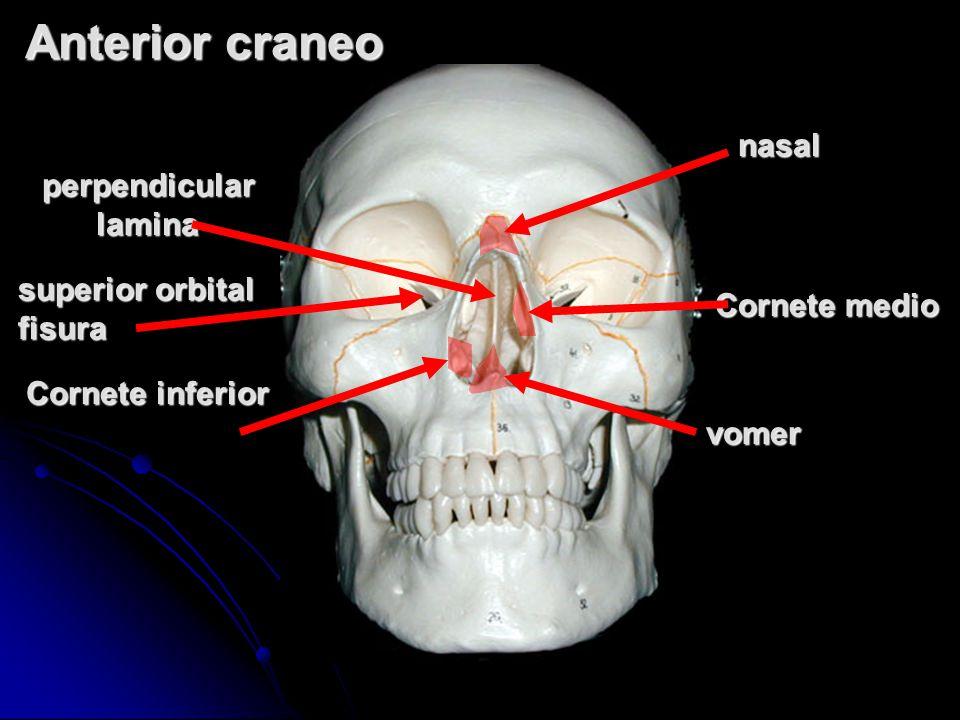 Anterior craneo nasal perpendicular lamina superior orbital fisura