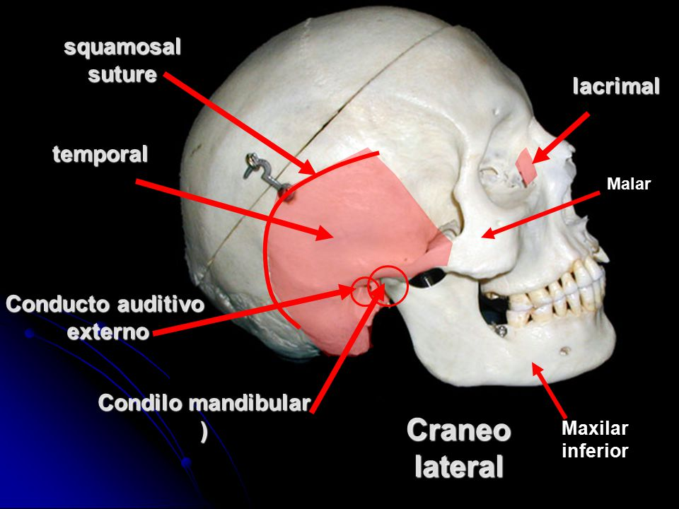 Craneo lateral squamosal suture lacrimal temporal Conducto auditivo