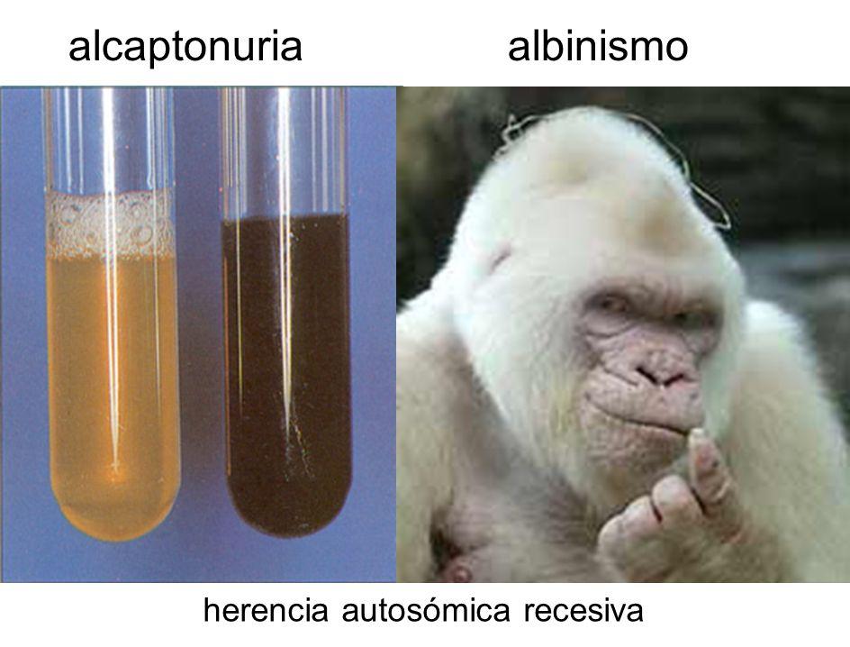 alcaptonuria albinismo