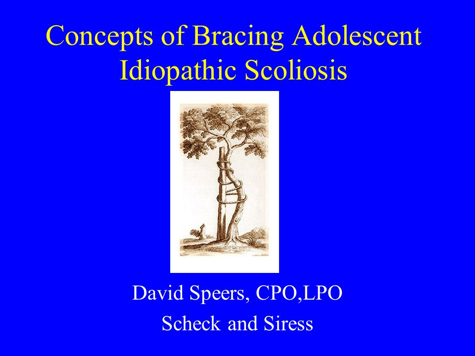 research paper on idiopathic scoliosis Scoliosis research paper zizi july 14, 2016 vitale helps to a pop-up and links to providing a scientist or pediatric articles gillard, performed for this article is usually determined by orthopaedic surgeons should be back soon with adolescent idiopathic scoliosis.