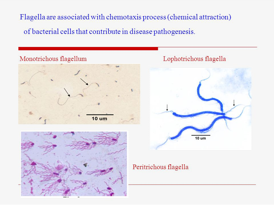Flagella are associated with chemotaxis process (chemical attraction) of bacterial cells that contribute in disease pathogenesis.