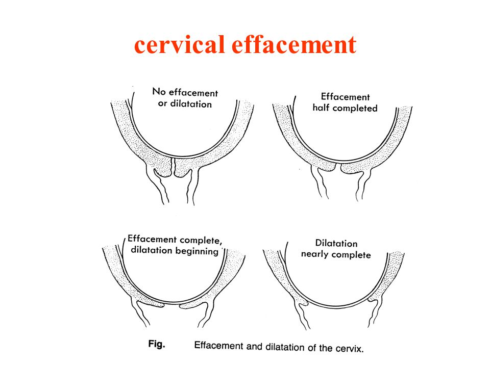 Normal labor and delivery ppt download 63 cervical effacement ccuart Gallery