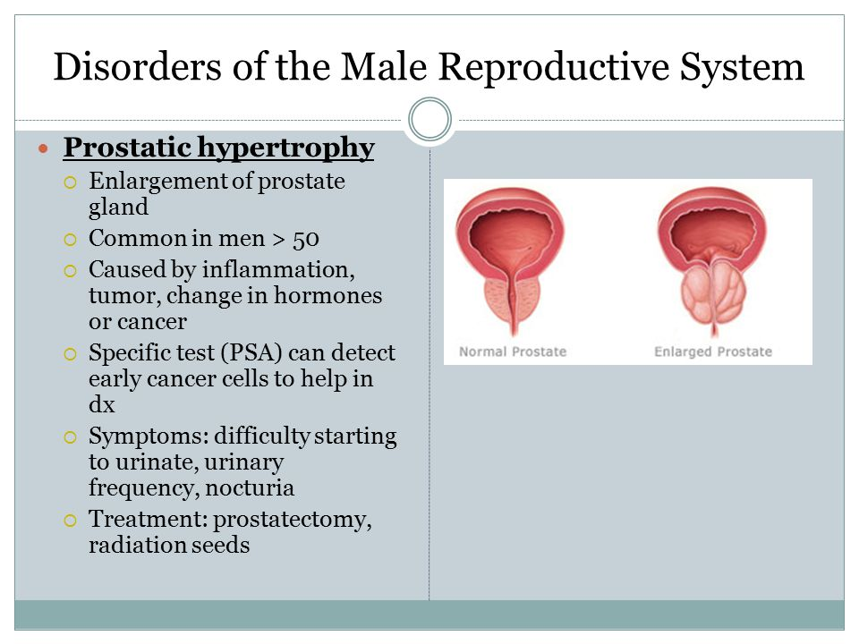 Male reproductive system essay