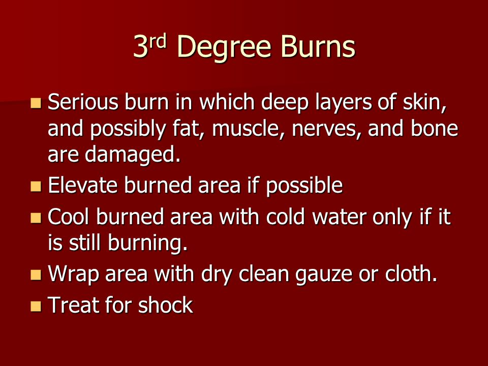 3rd Degree Burns Serious burn in which deep layers of skin, and possibly fat, muscle, nerves, and bone are damaged.