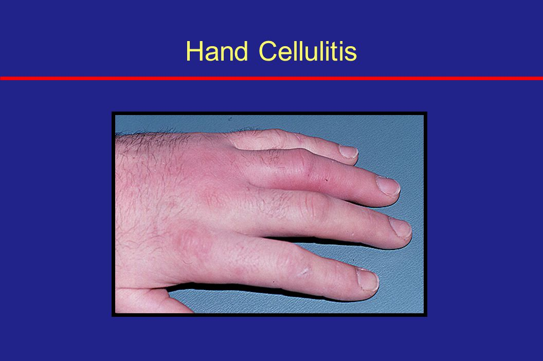 skin amp soft tissue infections ppt download