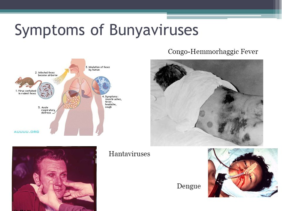 Symptoms of Bunyaviruses