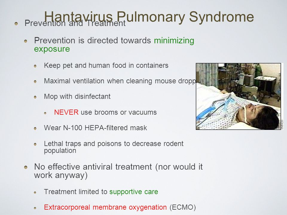 hantavirus pulmonary syndrome research paper Recent evidence of hantavirus circulation in the american outbreak hantavirus pulmonary syndrome are at the forefront of hantavirus research in latin.