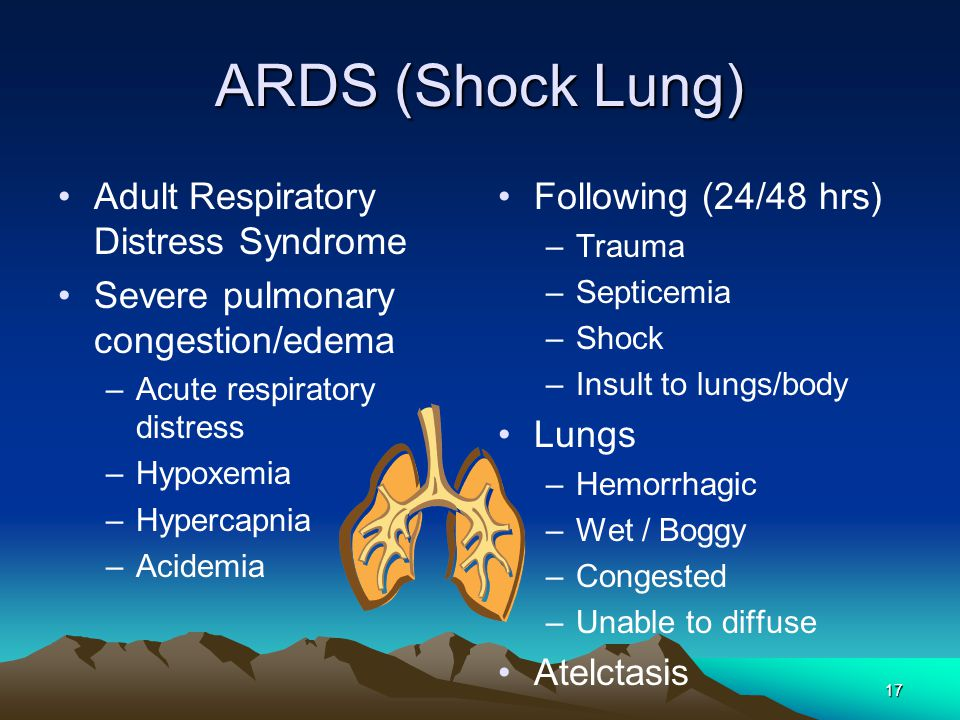 Acute Respiratory Distress Syndrome: Pathophysiology and Therapeutic Options