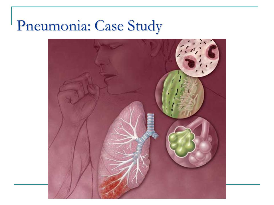 pneumonia a case study This case study follows a patient with acute pneumonia and talks about the pathophysiology and clinical manifestations of pneumonia.