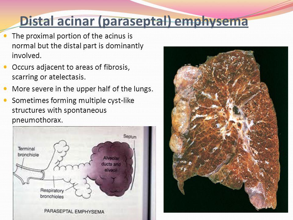 Pathology of Chronic obstructive airway diseases - ppt ...   960 x 720 jpeg 129kB