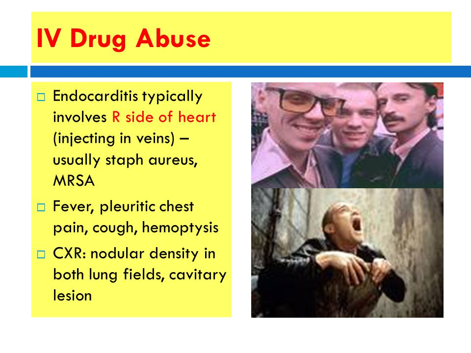 Clindamycin Side Effects Chest Pain