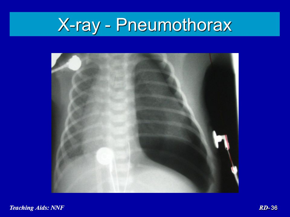 X-ray - Pneumothorax