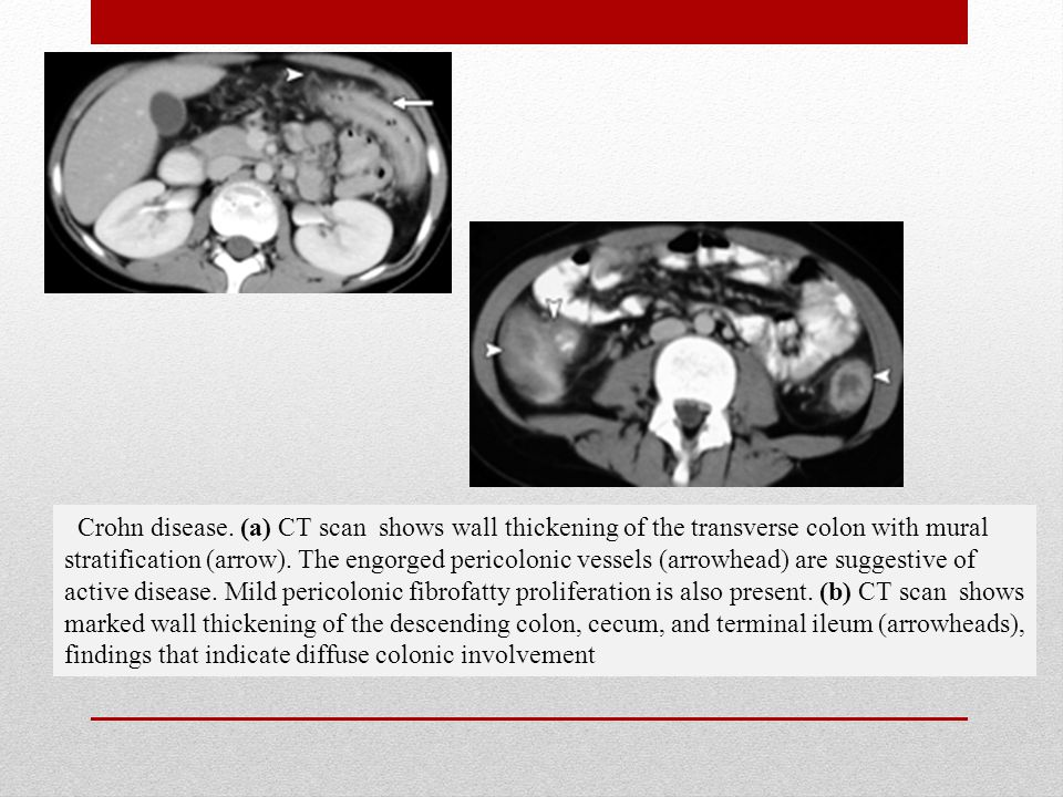 Bowel wall thickening in children ct findings ppt download for Colonic mural thickening