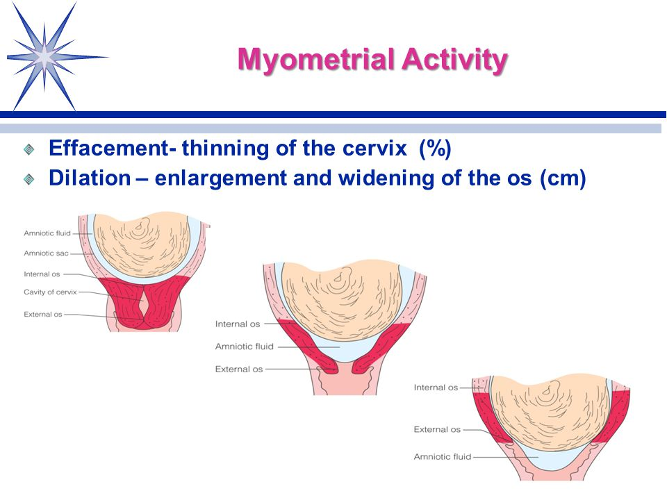 Amazing Myometrial Activity Effacement  Thinning Of The Cervix (%)