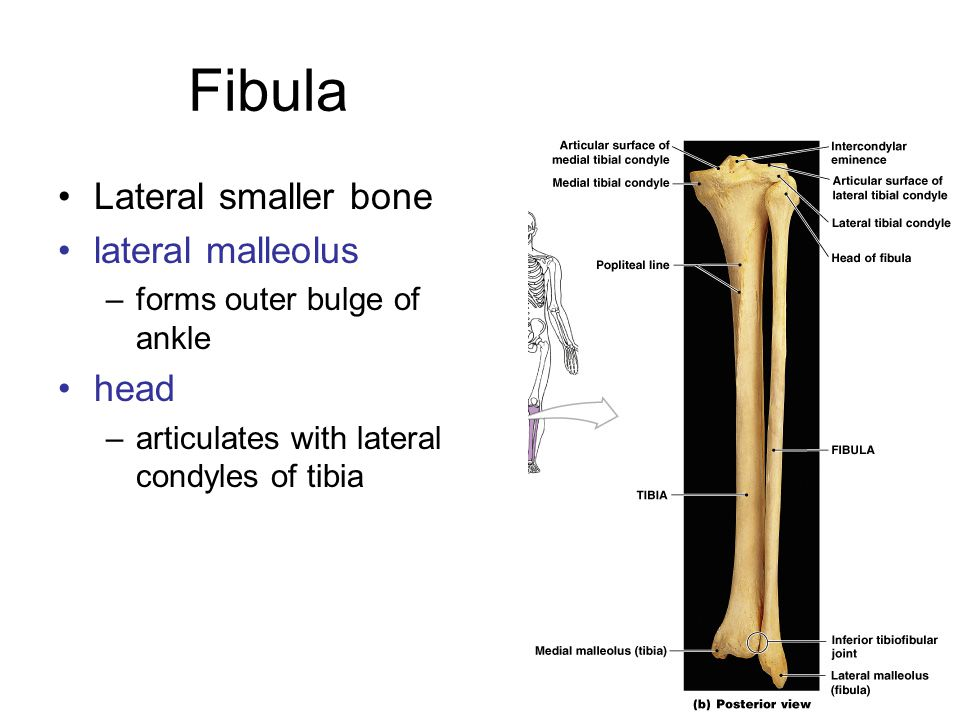 Fibula Lateral smaller bone lateral malleolus head