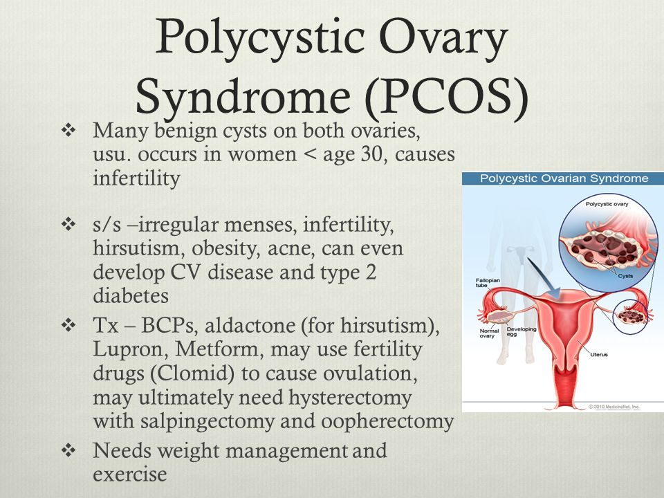 Cysts ovaries caused clomid