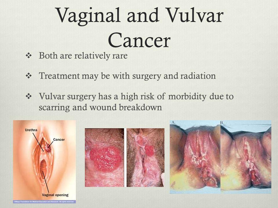 Cancer of the vulva symptoms