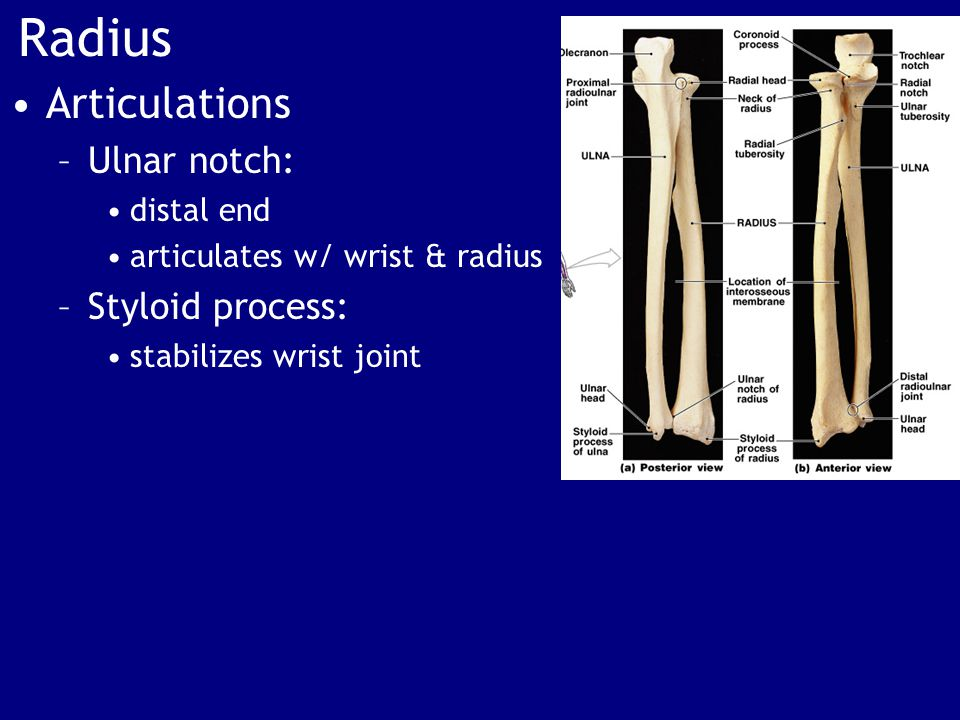 Radius Articulations Ulnar notch: Styloid process: distal end