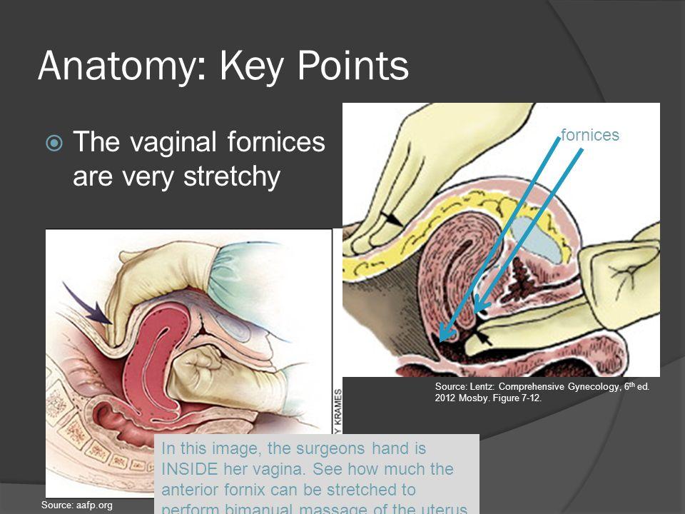 fornice vaginale posteriore