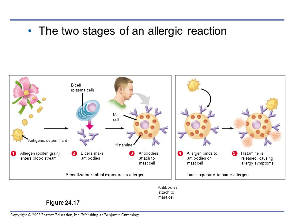 The two stages of an allergic reaction