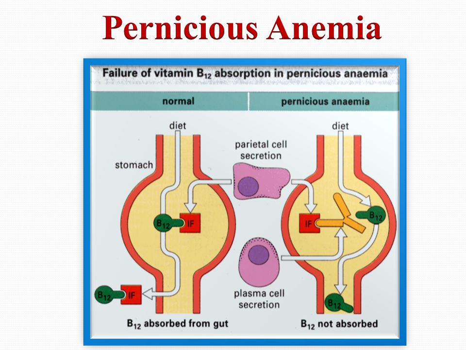 Pernicious Anemia and Vitamin B-12 Deficiency