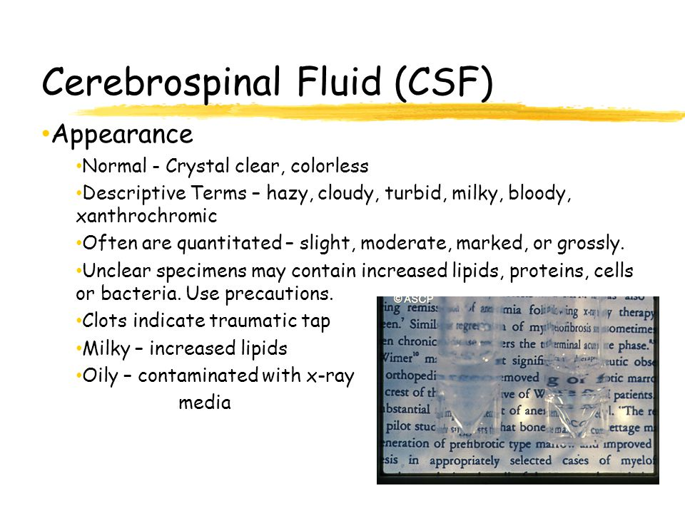 Cerebrospinal Fluid (CSF)