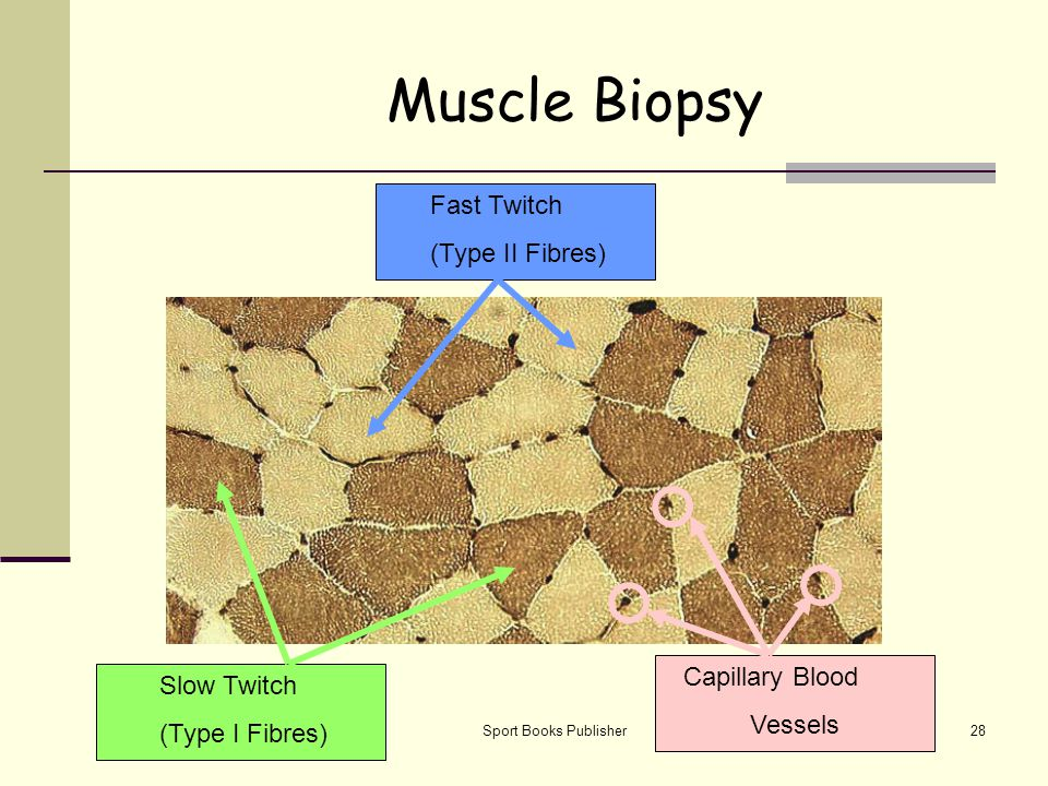 Muscle Biopsy Fast Twitch (Type II Fibres) Capillary Blood Slow Twitch
