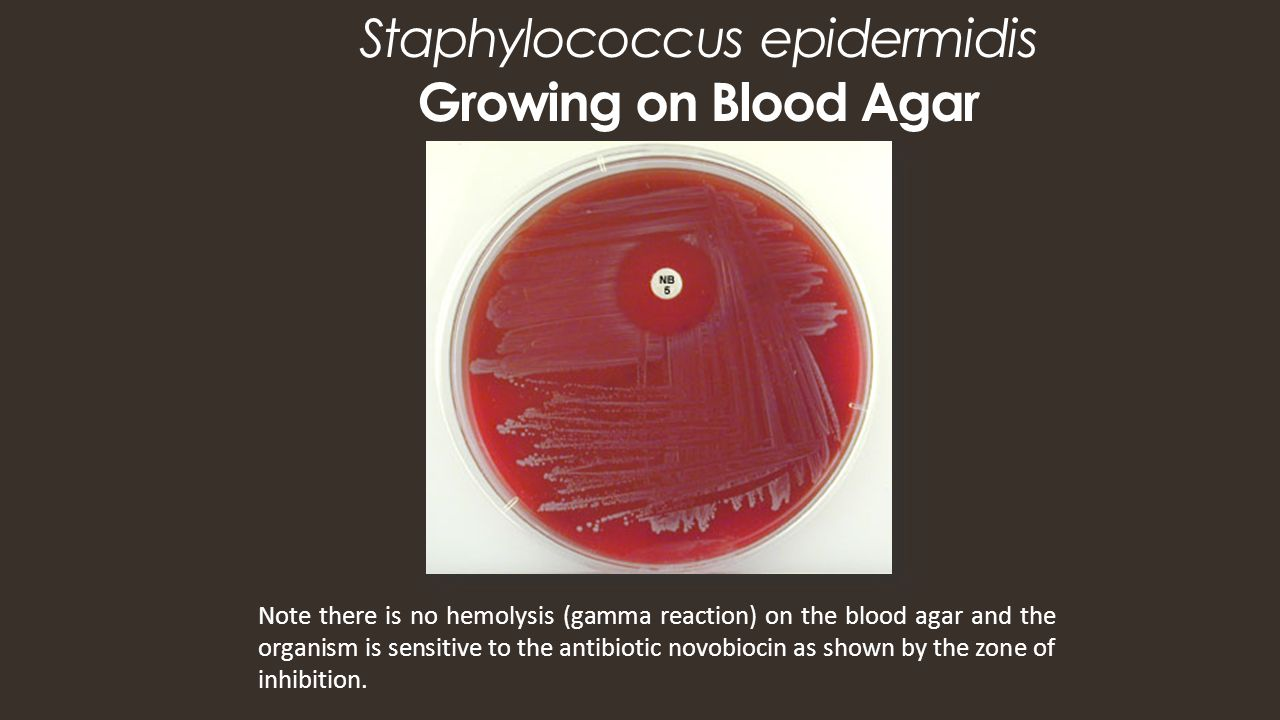 staphylococcus epidermidis Staphylococcus epidermidis description, causes and risk factors: staphylococcus epidermidis (s epidermidis) is a part of a normal skin flora, and it is often attached to the upper layer of the skin (epidermis) or mucosa, without causing any symptoms (staph epidermidis carrier state.