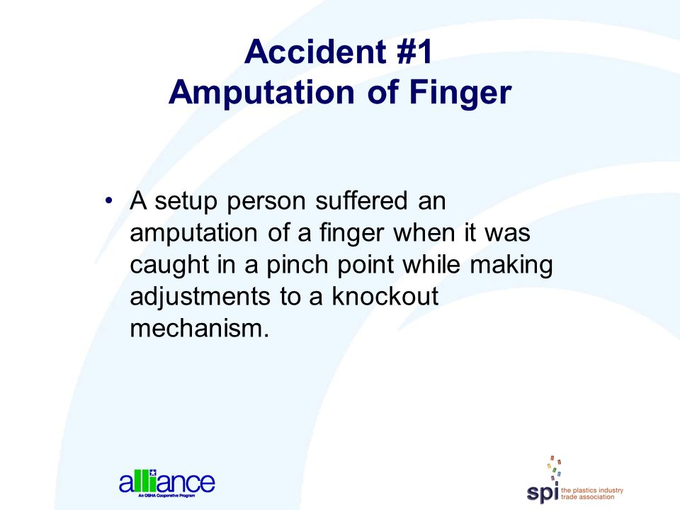 Accident #1 Amputation of Finger