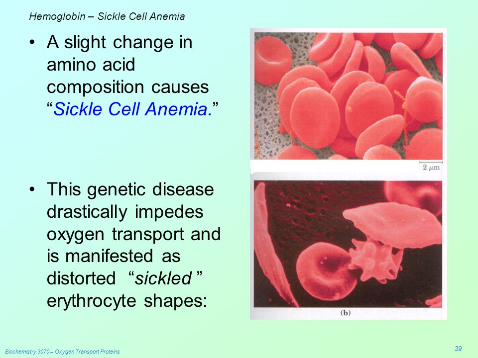 sickle cell anemia genetics pdf