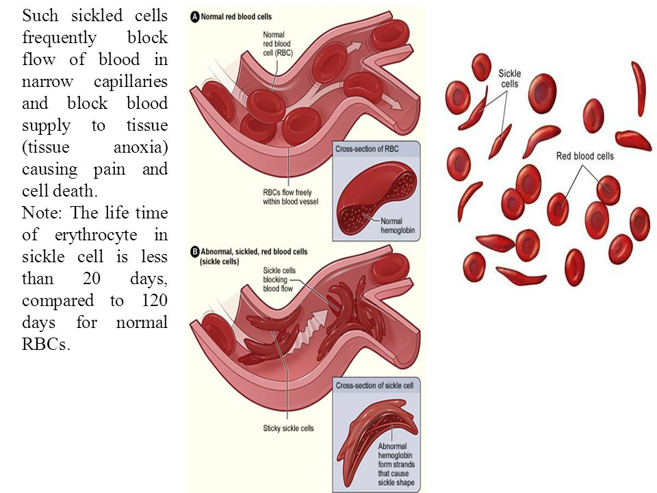 Such sickled cells frequently block flow of blood in narrow capillaries and block blood supply to tissue (tissue anoxia) causing pain and cell death.