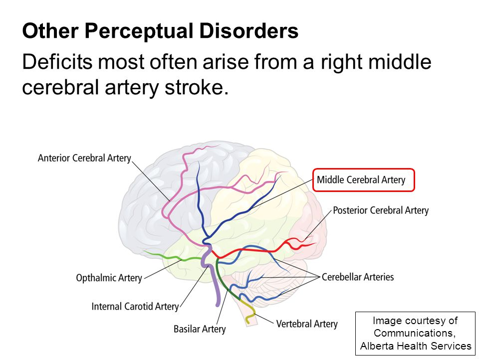 perceptual disorder Visual processing disorder has to do with the way the brain interprets what the  eye sees vpd often comes with adhd, dyslexia, and other.