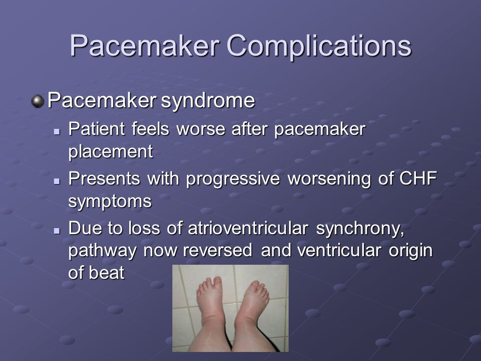 Pacemaker insertion complications