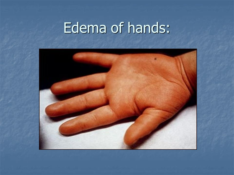 Edema of hands: