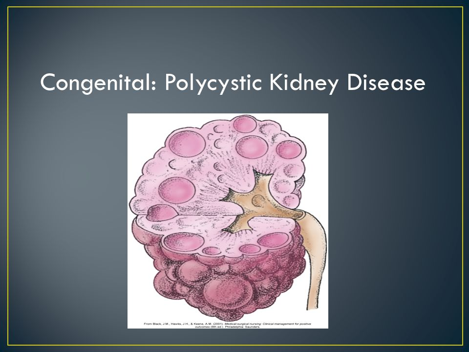 polycystic kidney disease essay Read this essay on polycystic kidney disease come browse our large digital warehouse of free sample essays get the knowledge you need in order to pass your classes and more.