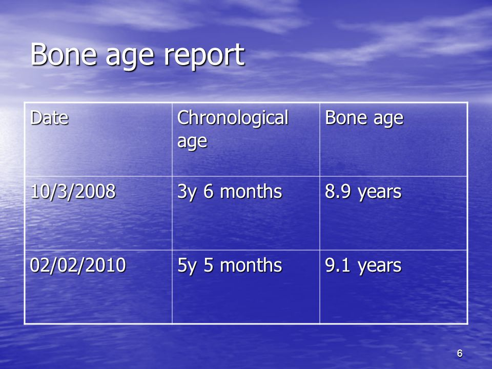 Bone age assessment   Radiology Reference Article ...