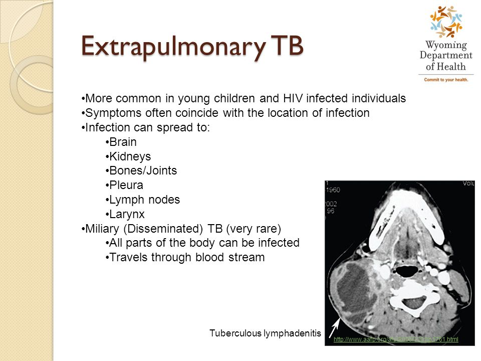 Extrapulmonary TB More common in young children and HIV infected individuals. Symptoms often coincide with the location of infection.