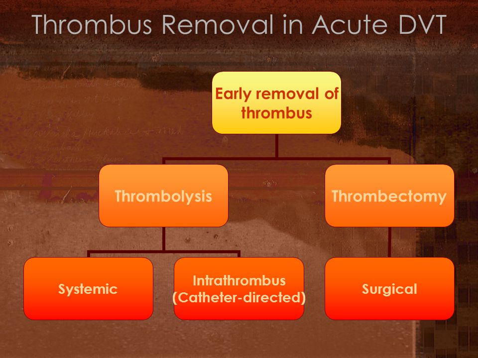 Thrombus Removal in Acute DVT