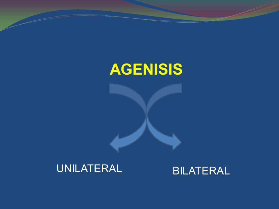 AGENISIS UNILATERAL BILATERAL