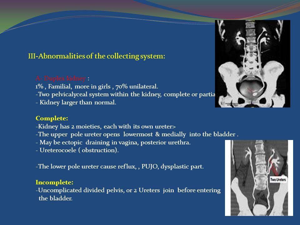 III-Abnormalities of the collecting system: